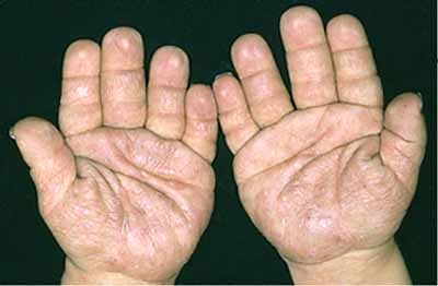 short fingers palmistry