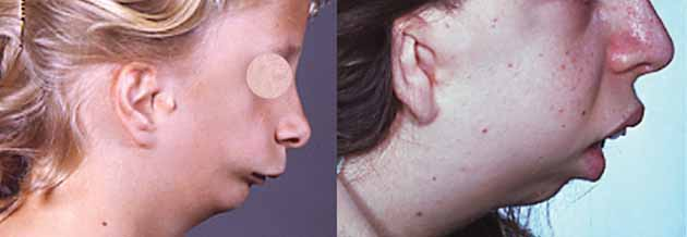 diamond blackfan anemia steroid treatment
