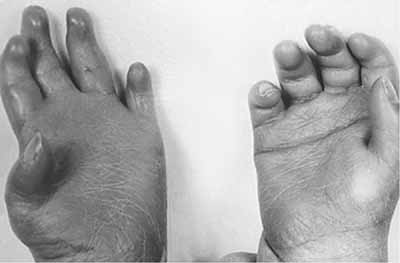 Palmar genetic single disorders crease Microphthalmia and